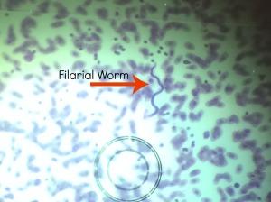 filarialworm